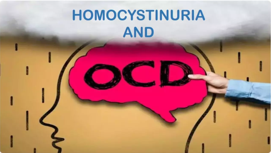 OCD Complicates Metabolic Disorder,    A Case Report